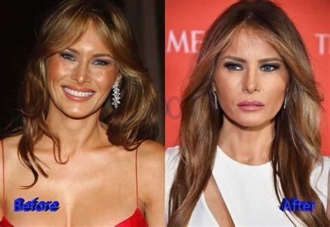 Analizamos la pasión de Melania Trump por la Estética