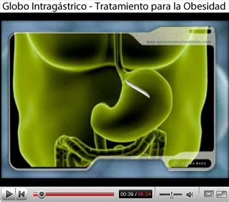 Balon Intragástrico   Notas Sobre Gastroenterología ...