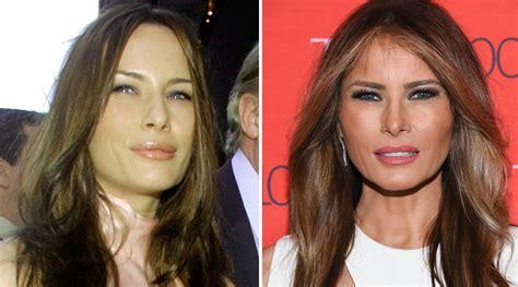 Melania Trump y la cirugía estética ¿se ha retocado o no ...